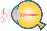 Aberrométrie avant opération des yeux au laser