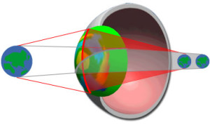 astigmate et hypermétrope composé