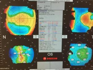 Cartographie de l'oeil par l'Orbscan