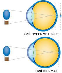 Définition hypermétropie